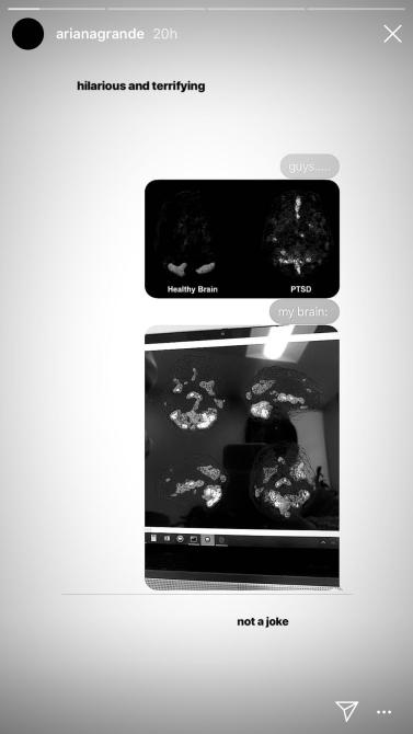 Ariana Grande Brain Scan.PNG